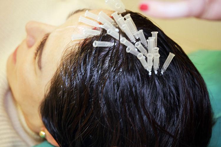 Die Anwendung von Fadenlifting in der Kopfhaut kann Haarausfall stoppen und verbessern.