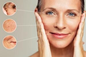 Im Hautarzt-Zentrum Kiel bieten wir Ihnen viele verschiedene Behandlungs-Optionen, um Falten und andere Alterserscheinungen verschwinden zu lassen.
