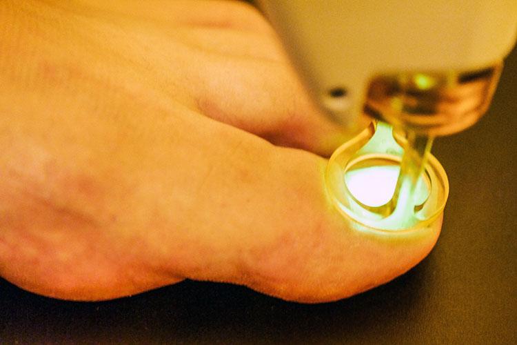 Nagelpilz wird vom Hautarzt mit dem medizinischen Laser behandelt.