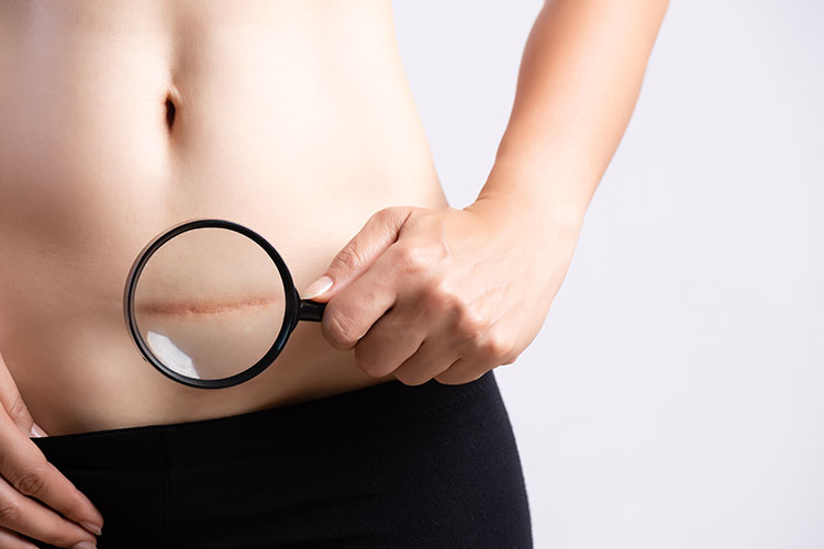 Auffällige Unfall- oder Operations-Narben (hier: Kaiserschnitt-Narbe) kann der Hautarzt in den meisten Fällen durch eine Laser-Behandlung deutlich reduzieren.