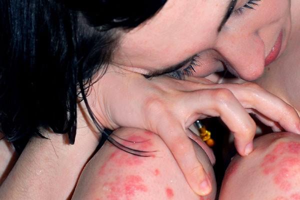 Die Schuppenflechte (Psoriasis) ist eine chronische Autoimmunerkrankung.
