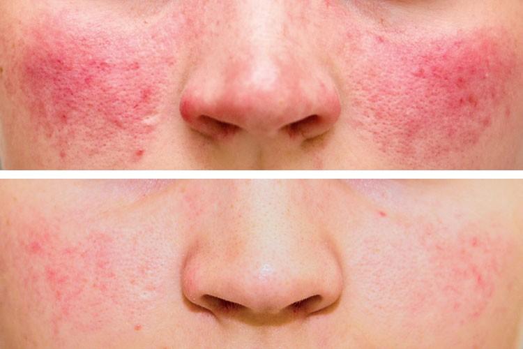 Mit einer Laser-Behandlung kann der Hautarzt die Rosacea-Symptome deutlich verbessern. (hier: Vorher-Nachher-Bilder einer Behandlung im Hautarzt-Zentrum Kiel 2013.)