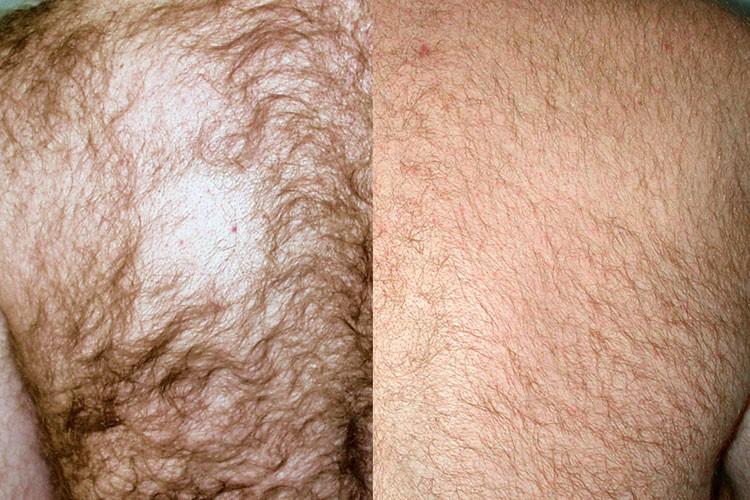 Starker Haarwuchs kann durch Haarentfernung mit dem medizinischen Laser gut reduziert werden.